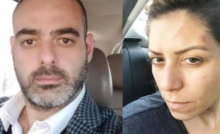 Avukat Eşine Şiddet Uygulayan Kişi Ev Hapsinde Öldürüldü
