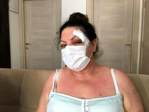 Muğla'da Bir Kadın Aracının Yerine Park Eden Sürücü Tarafından Dövüldü