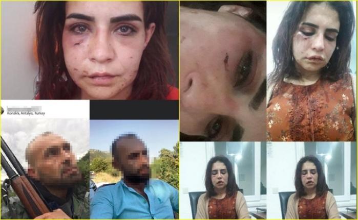 """Eski Sevgilisi Tarafından Öldüresiye Dövülen Beyza'dan Tardım Çığlığı: """"Ölmek İstemiyorum"""""""