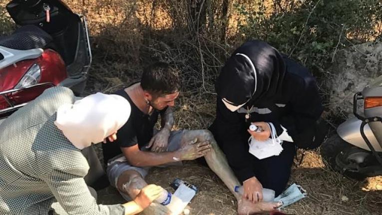 Muğla'da Yangından Vücudu Yanan Gence İlk Müdahaleyi Malatya Milletvekili Çalık Yaptı