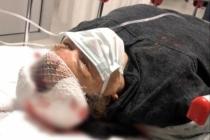 Yatağan'da Köpeklerin Saldırısına Uğrayan Emekli Öğretmen Ağır Yaralandı