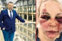 Rus Kadın İşkenceyi Anlattı: Ellerindeki Kanımı Yalayıp 'Tadı Ne Güzelmiş' Diyordu