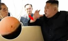 Kuzey Kore Lideri Kim Jong-un Kalp Ameliyatı Olmuş Olabilir!