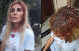 Kadına Şiddet Bitmiyor: Sopalı Saldırıya Uğradı!