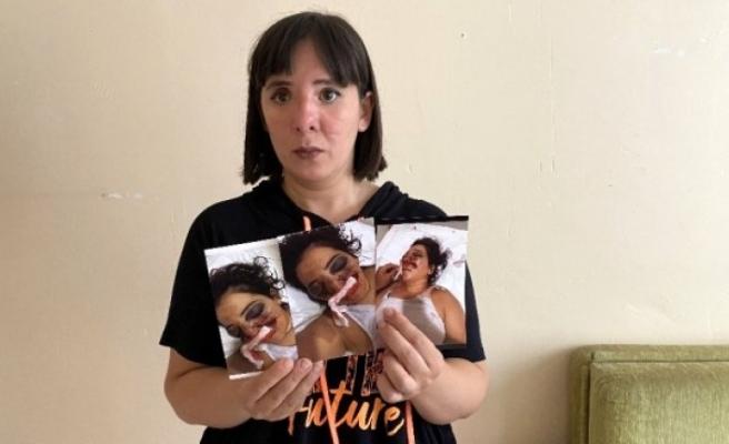 Fethiye'de ATV Kazasında Gözünü Kaybeden Kadın Adalet Bekliyor