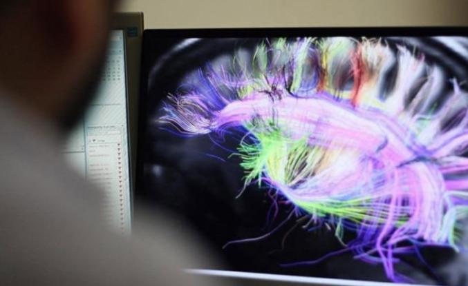 Covid-19, MS ve Alzheimer'i Arttıracak!